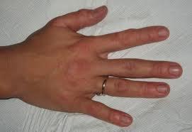 kézfej4